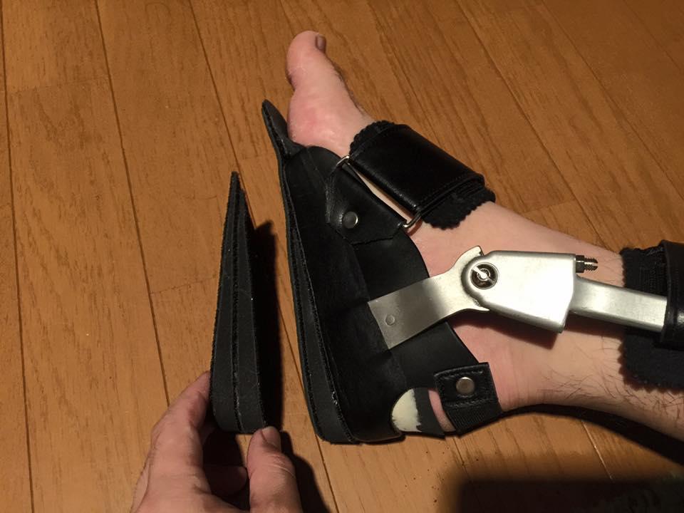 アキレス腱断裂 装具