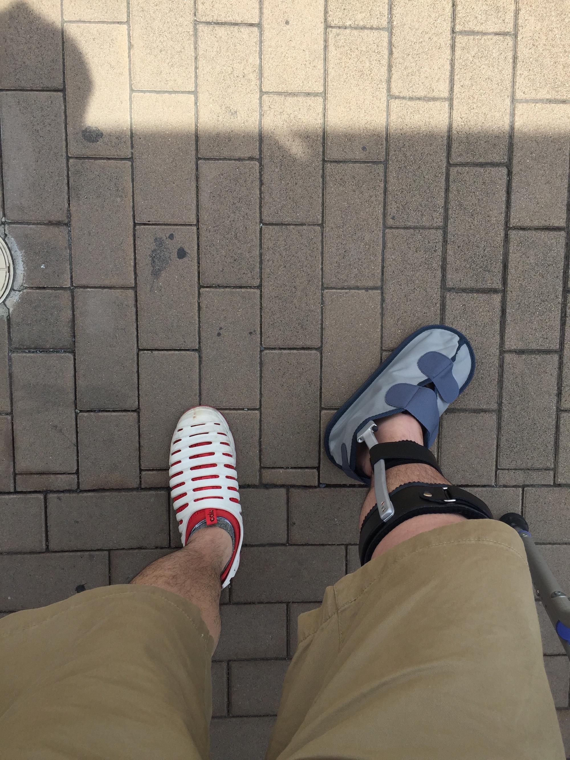 アキレス腱断裂 保存療法 歩行用装具生活【受傷14日目〜28日目】