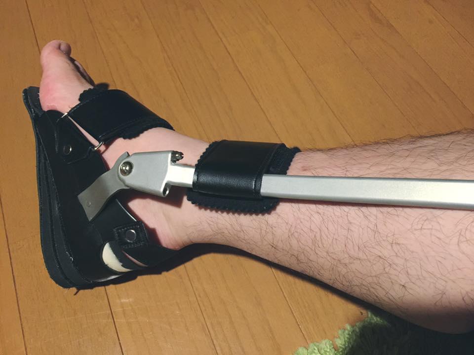 アキレス腱断裂 歩行用装具