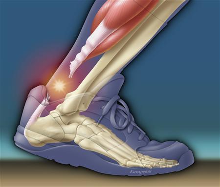 アキレス腱断裂 手術と保存のどっちを選ぶ?